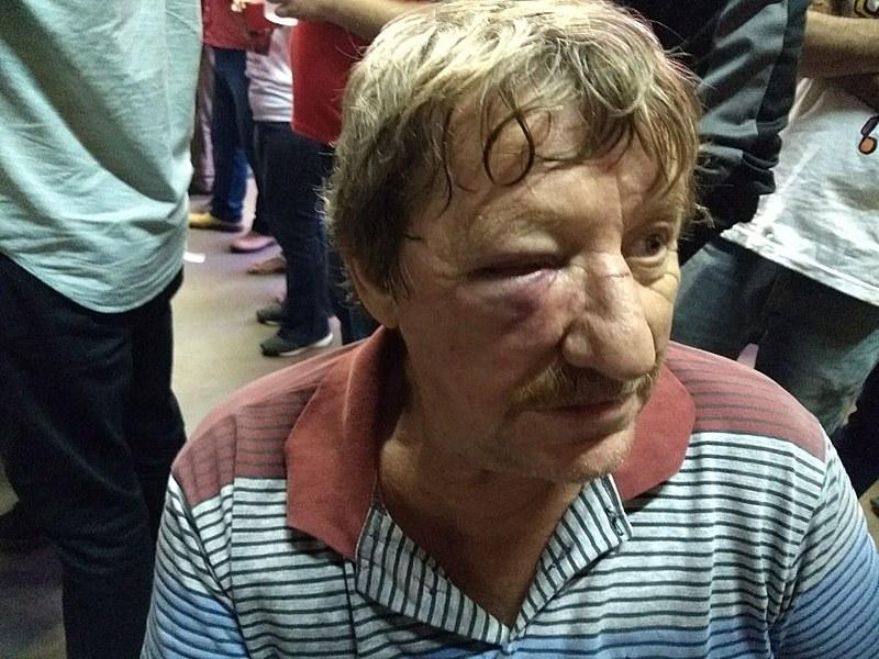 Padre Idalino Alflen levou uma pedrada na cabeça e foi atropelado por uma motocicleta quando chegava ao Sindicato dos Eletricitários