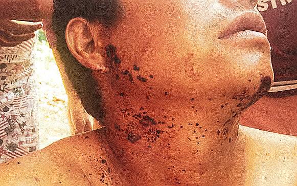 Indígena daretomadaNhu Vera ferido por bala de borracha