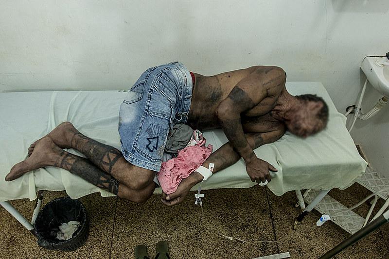 Indígenas Gamela ferido recebendo em atendimento médico na cidade de Vitória do Mearim