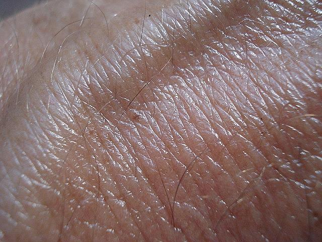 Pintas escuras na pele que passam a modificar com o tempo também podem ser um sinal de tumor; deve-se buscar um especialista.