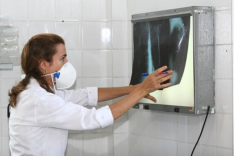 Estado do Rio de Janeiro possui a segunda maior incidência de casos de tuberculose no país