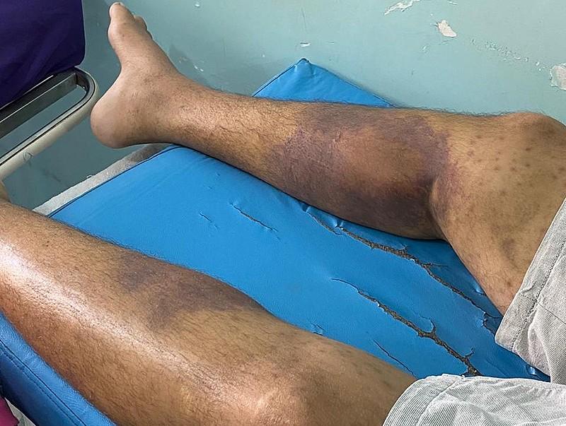 A infecção de pele causada por bactérias, segundo a Secretaria Estadual de Saúde de Roraima, é resultante de uma sarna não tratada