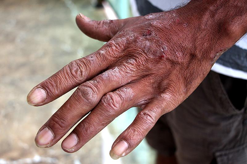 Após o rompimento da barragem muitas pessoas começaram a apresentar problemas comuns, respiratórios, dermatológicos e psicológicos