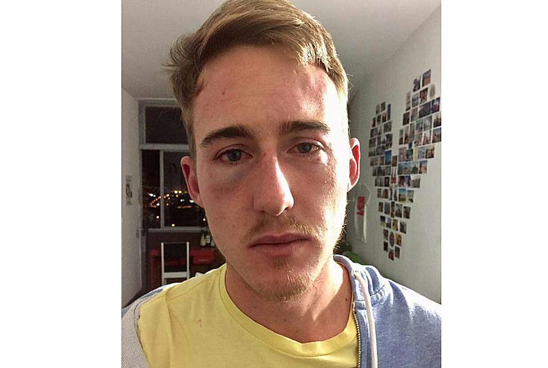 O norte-americano Shane Landry, que teve diversas escoriações pelo corpo, publicou desabafo em rede social