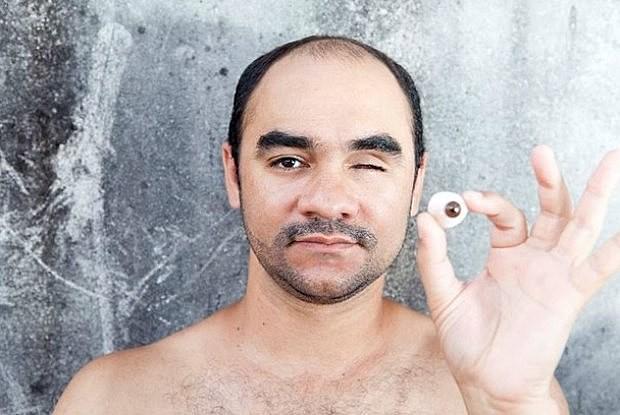 Sérgio Silva portava apenas a máquina fotográfica e registrava os protestos de 13 de junho de 2013 quando foi atingido no rosto por uma bala de borracha