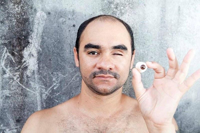 Fotógrafo Sérgio Silva perdeu o olho esquerdo, seu instrumento de trabalho, em decorrência da ação da PM